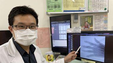 婦手指關節退化致疼痛變形 血管栓塞治療獲改善 - 即時新聞 - 自由健康網