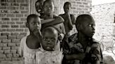 Pandemic surges in Africa as it slows elsewhere