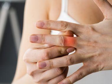 關節出現7大變化小心是「類風濕性關節炎」! 不治療恐侵犯身體其他器官