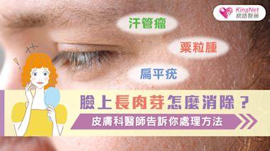 臉上長肉芽怎麼消除?汗管瘤、粟粒腫、扁平疣,皮膚科醫師告訴你處理方法