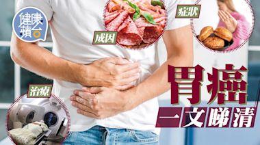 胃癌︱成因 症狀 治療 一文睇清 8成確診病人屬晚期 40歲後定期照胃鏡可及早發現 | 蘋果日報