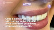 These 4 procedures can transform your smile