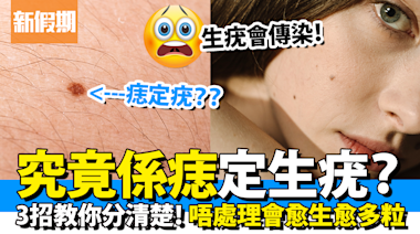 生疣有傳染性 別當是油脂粒!做Facial易感染 5種解決方法+處理不當會留疤@FindDoc專欄|好生活百科 | 好生活百科 | 新假期