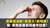 鼻塞是過敏?鼻竇炎?鼻咽癌?醫:單側鼻塞兩周盡早就醫! | 健康 | NOWnews今日新聞