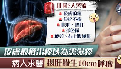 【癌症警號】皮膚痕癢出疹以為患濕疹 求醫揭肝臟生10cm腫瘤【附肝臟5大警號】 - 香港經濟日報 - TOPick - 健康 - 醫生診症室