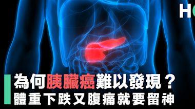 【無聲殺手】為何胰臟癌難以發現?體重下跌又腹痛就要留神