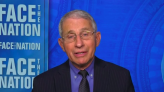 "Fauci says vaccine supply will ""dramatically"" increase in weeks ahead"