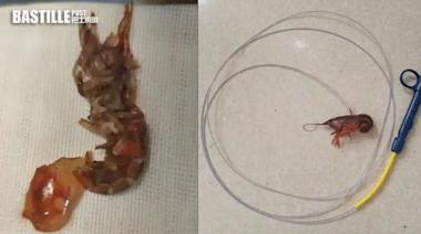 浙江14歲仔將小龍蝦塞入肛門 模仿外國節目榨乾水份 | 兩岸