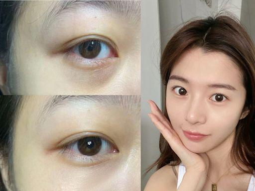 擊退眼睛過勞的黑眼圈!每天多按這6個眼部穴位,舒緩同時找回迷人眼神