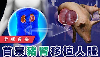 【器官移植】首宗豬腎移植人體 成功排出尿液無排斥