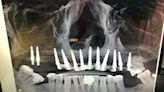 高雄男植牙竟7根金屬植體穿孔鼻腔 牙醫賠錢仍起訴