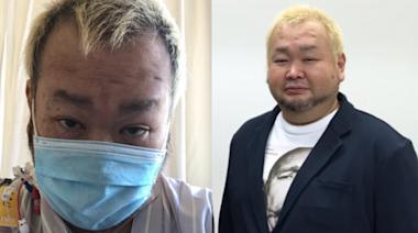 日男星確診新冠肺炎昏迷8天 「手腳肌肉萎縮」站立困難