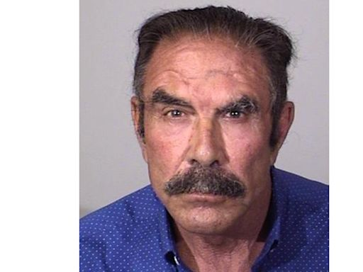 California Cosmetic Surgeon, 73, Accused of Sexually Assaulting 14 Patients