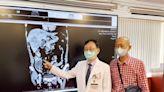 36歲男解血便 檢查發現結腸惡性腫瘤