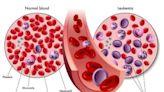 為什麼會得白血病?白血病會有哪些症狀?中醫中藥有何治療作用