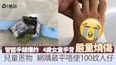 兒童恩物智能手錶突爆炸 4歲女手背三級燒傷超慘 家長睇到心驚