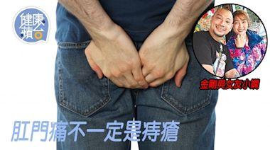 肛門廔管︱金剛疑生腫瘤實為肛門廔管 成因乃肛門膿瘡破裂 建議做手術否則有機會流出糞便   蘋果日報
