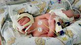 受聖經啟示 夫婦未放棄脊柱裂胎兒 挽救生命