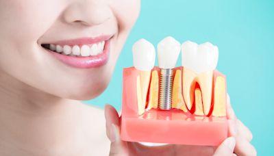 缺牙怎麼辦?該不該處理?不只影響外觀,牙醫解答5大問題 天下雜誌