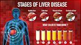 Grasa en el hígado: 3 síntomas tempranos que es mejor NO ignorar