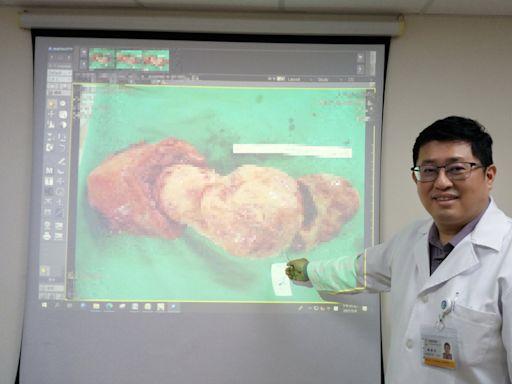 婦人徒步進香險暈倒 送醫驚見2肌瘤近30公分 (圖)