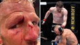 TJ Dillashaw suffers horror head wound on return to UFC after TWO-YEAR drug ban