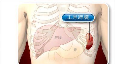 《愛肝加油站》肝硬化引發脾臟腫大 血小板都會偏低 - 即時新聞 - 自由健康網