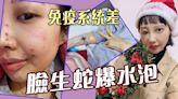 抗癌勇士丨李明蔚進行免疫細胞第二個療程期間 體質差臉生蛇爆水泡