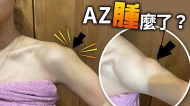 她接種AZ手臂驚現「巨大腫塊」!第二劑能打嗎?醫師這樣說 | 蘋果新聞網 | 蘋果日報