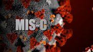 Rare, life-threatening condition MIS-C linked to children with COVID-19