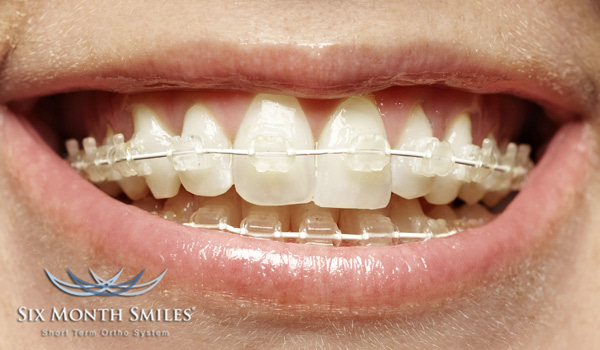 Month Braces ? Could it be for you? - Docklands Dental