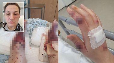 疫苗接種|蘇格蘭女接種阿斯利康後一周 手腳臉部長滿駭人血泡 一度擔心要截肢 | 蘋果日報