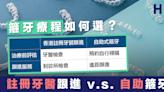【牙齒矯正】箍牙療程如何選? 註冊牙醫跟進 v.s. 自助箍牙