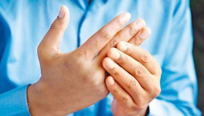 中醫食療|深秋轉涼最易骨痛發作 中醫內外處方減關節炎痛症 | 中西食療