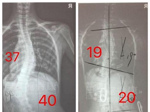 12歲女孩側彎40°,為何在2個月就將體態恢復基本正常?