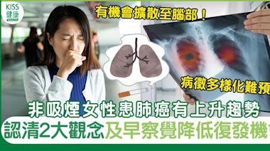 肺癌病徵多樣化不僅咳嗽呼吸不暢 醫生解構2大刻板印象及治療方法   健康   Sundaykiss 香港親子育兒資訊共享平台