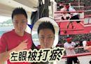 鍾培生練拳挑戰重磅對手 左眼被打瘀變「單眼熊貓」 | 蘋果日報