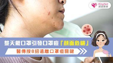 整天戴口罩引發口罩痘「顏面危機」,醫傳授8招遠離口罩痘關鍵