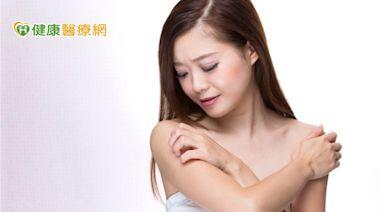 長期飽受異位性皮膚炎困擾 生物製劑治療助改善 | 健康 | NOWnews今日新聞