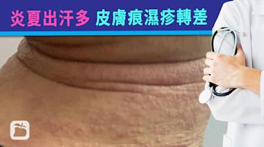 健康online︱炎夏做運動出汗多可致皮膚痕濕疹轉差 宜勤換衣物兼善用風扇仔降溫 | 蘋果日報