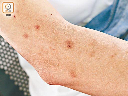 探射燈:馬鞍山體驗 休憩處群蚊圍攻 10分鐘手腳紅腫 - 東方日報