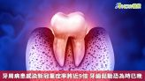 牙周病患感染新冠重症率將近9倍 牙齒鬆動恐為時已晚