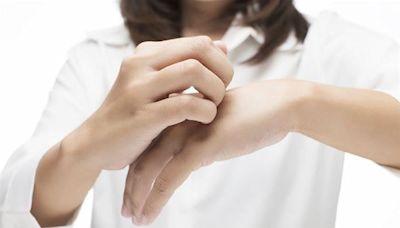 打AZ疫苗皮膚冒癢疹,蕁麻疹發作!中醫:紫蘇葉泡澡可暫時止癢