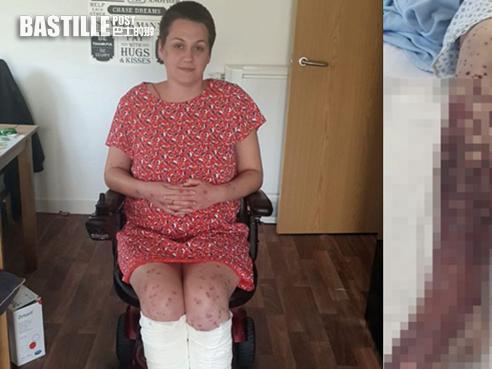 34歲女接種阿斯利康疫苗現嚴重過敏 手腳長滿血泡險截肢 | 大視野