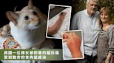 家貓抓傷手臂險要主人命!出現怪異紅腫快送醫!食肉菌會致死
