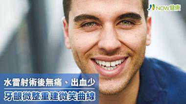 「笑」臉「齦」人沒自信 水雷射牙齦微整重建微笑曲線