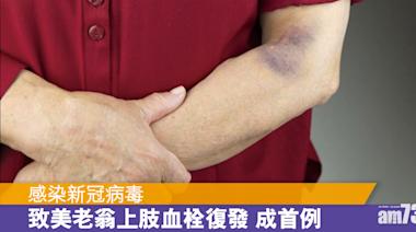 新冠肺炎丨美老翁確診後令上肢血栓復發 - 香港健康新聞 | 最新健康消息 | 都市健康快訊 - am730