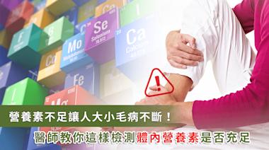 腳痛、水腫可能是缺乏維生素造成!醫師教你檢測體內營養素 | 健康 | NOWnews今日新聞