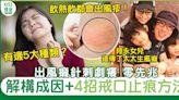 出風癩風疹急救止痕癢方法|中醫拆解生風癩成因-戒口止痕4步搞掂 | 健康 | Sundaykiss 香港親子育兒資訊共享平台