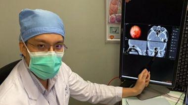 失明、顱內出血風險不在 導航鼻竇手術清除病灶 | 台灣好新聞 TaiwanHot.net